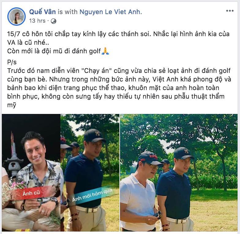 Quế Vân thanh minh cho nhan sắc Việt Anh sau khi dao kéo bằng hình ảnh hiện tại gây hoang mang không kém-2