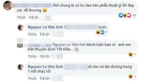 Dân mạng đánh giá không dao kéo thì đẹp trai, Việt Anh lập tức xử lý mạnh tay gây ngỡ ngàng-3