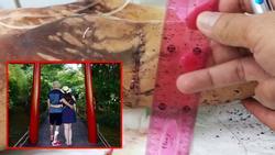 Việt kiều Canada bị cắt gân chân, tạt axit đến biến dạng khi chở bạn gái đi chơi giờ ra sao?