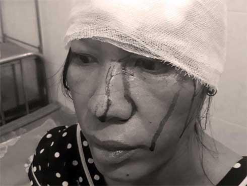Người phụ nữ khuyết tật đang mang thai bị đánh nhập viện-1