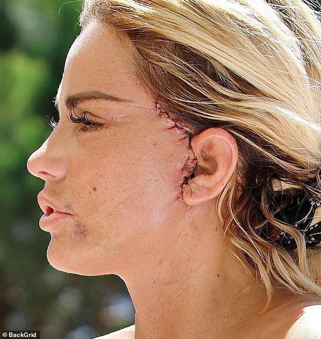 Katie Price xuất hiện với gương mặt biến dạng vì phẫu thuật thẩm mỹ-1