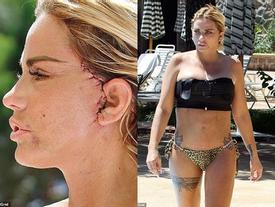 Katie Price xuất hiện với gương mặt biến dạng vì phẫu thuật thẩm mỹ