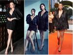 Rộ tin đồn hoa hậu Lương Thùy Linh làm lại răng sau 1 tháng đăng quang Miss World Vietnam-7