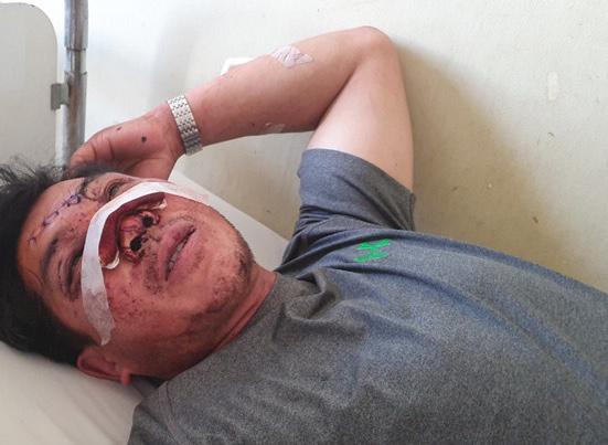 Giây phút cụ ông 91 tuổi văng khỏi xe thiệt mạng ở Khánh Hòa-2