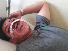 Giây phút cụ ông 91 tuổi văng khỏi xe thiệt mạng ở Khánh Hòa