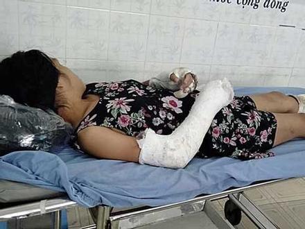 Công an lý giải vì sao chưa bắt khẩn cấp kẻ đánh vợ dã man