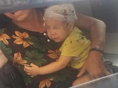 VZN News: Chổi lau nhà rơi từ tầng 17 trúng đầu bé trai 1 tuổi-1