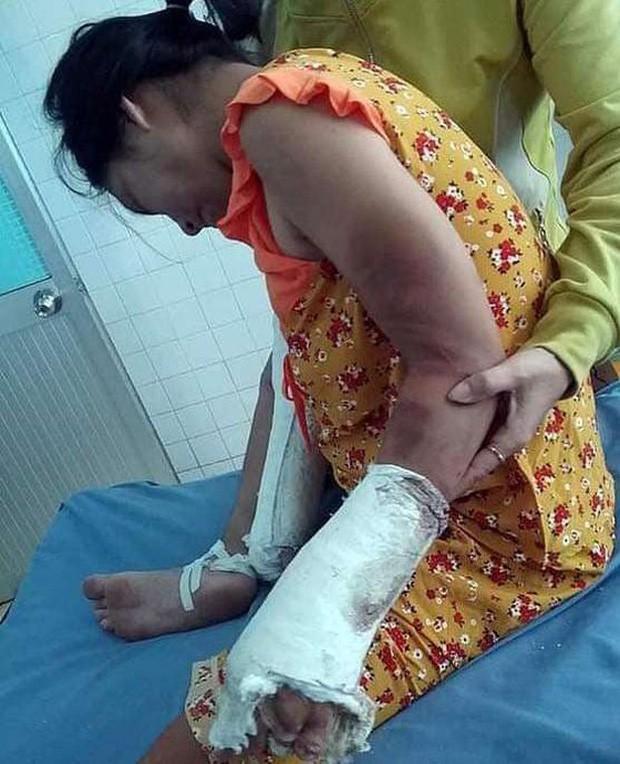 VZN News: Bắt gã chồng hờ hành hạ dã man thai phụ ở Bình Thuận-2