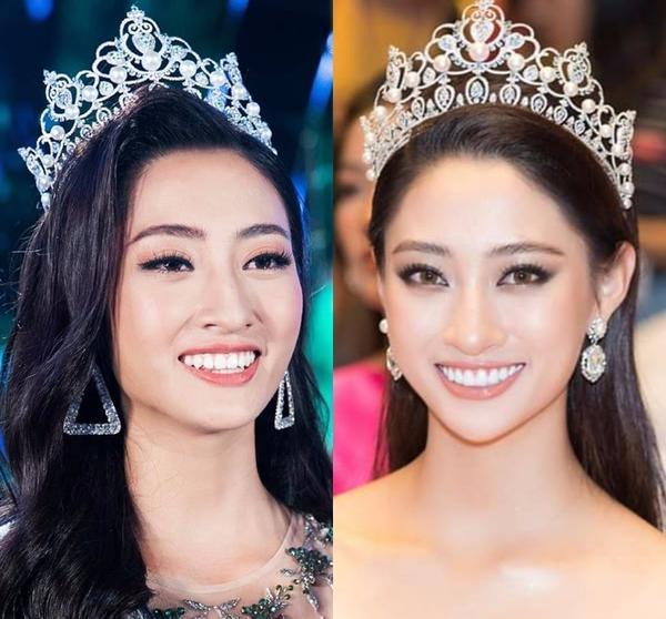 Rộ tin đồn hoa hậu Lương Thùy Linh làm lại răng sau 1 tháng đăng quang Miss World Vietnam-1