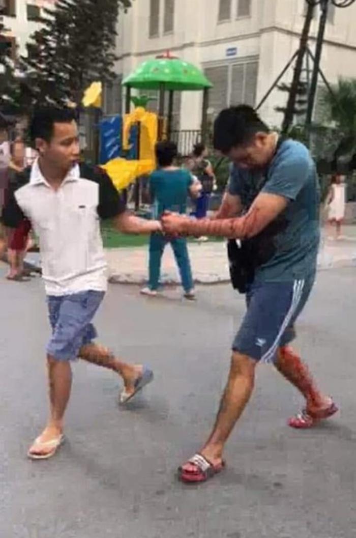 VZN News: Vụ nổ hộp bưu kiện ở Linh Đàm làm nhiều người bị thương: Xuất phát từ mâu thuẫn cá nhân-1