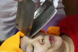 Massage bằng dao phay hút khách ở Trung Quốc