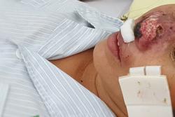 Hàng chục người nhập viện Bạch Mai do nhiễm vi khuẩn ăn thịt người