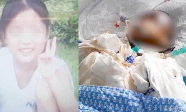 Bắt chước thánh ăn văn phòng làm bỏng ngô bằng lon nước, bé gái bỏng nghiêm trọng rồi tử vong-5