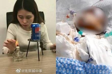 Bắt chước 'thánh ăn văn phòng' làm bỏng ngô bằng lon nước, bé gái bỏng nghiêm trọng rồi tử vong