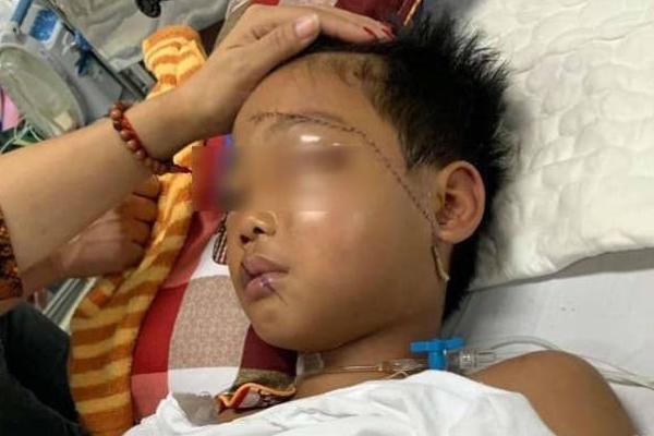 Vụ cháu bé bị bác họ chém đứt lìa tay ở Bắc Giang: Nạn nhân vô cùng sợ hãi, hoảng loạn khi tỉnh lại-1