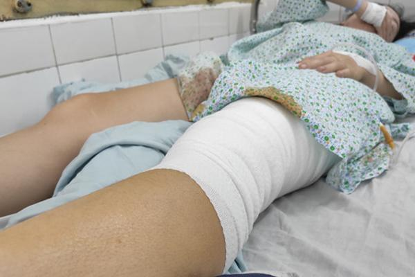 Nữ cổ động viên kể khoảnh khắc bị pháo sáng ném vào chân ở Hàng Đẫy-1
