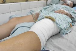 Nữ cổ động viên kể khoảnh khắc bị pháo sáng ném vào chân ở Hàng Đẫy