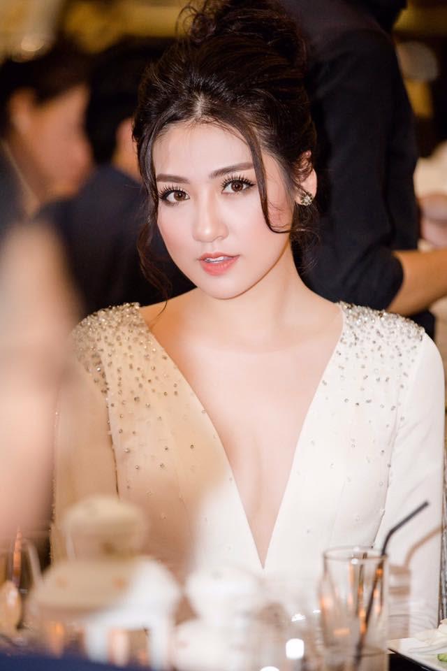 Sao Việt thay đổi gương mặt - người thừa nhận dao kéo, người bác bỏ-5