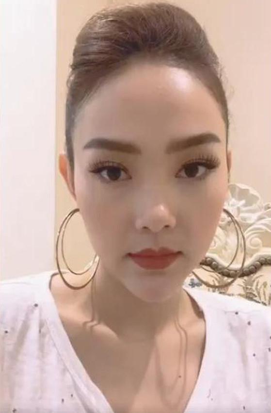 Sao Việt thay đổi gương mặt - người thừa nhận dao kéo, người bác bỏ-14