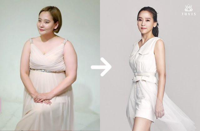 Sao Hàn thay đổi khó nhận ra sau khi giảm cân-5