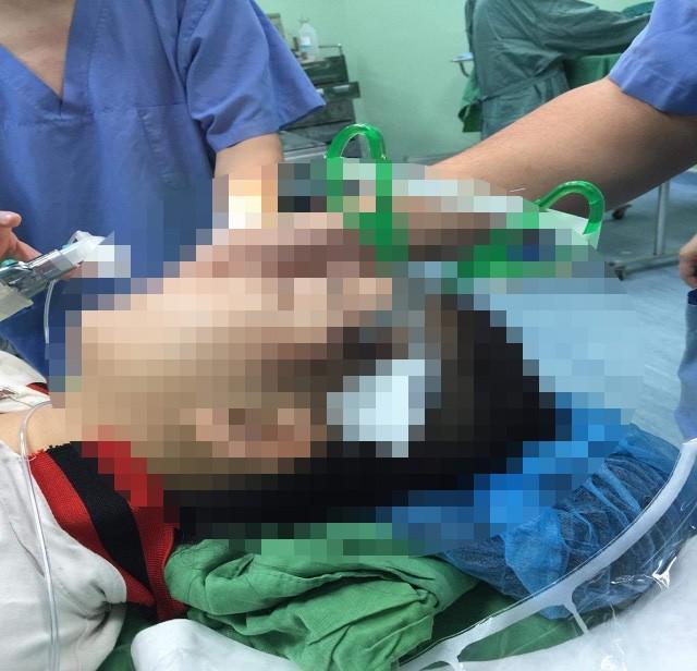 Nô đùa cùng bạn trong lớp, bé gái 10 tuổi bị kéo đâm sâu vào đầu-1