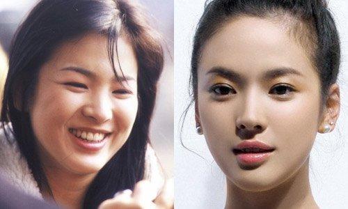 Lại xuất hiện trẻ xinh như gái 20, Song Hye Kyo sau ly hôn như ngày một nhuận sắc-5