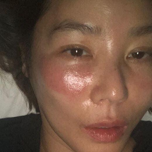 Đắp mặt nạ đi ngủ, mẹ Kim Tan Kim Sung Ryung muốn xỉu khi thức dậy với đôi mắt sưng như quái vật-3