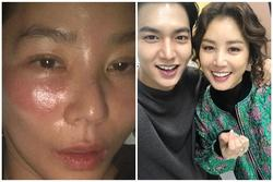 Đắp mặt nạ đi ngủ, 'mẹ Kim Tan' Kim Sung Ryung muốn xỉu khi thức dậy với đôi mắt 'sưng như quái vật'
