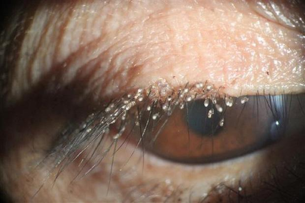 Quên tẩy trang, cô gái nuôi cả tổ bọ ve trên mi mắt-2