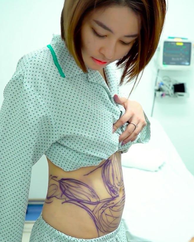 Thần tốc lấy lại vóc dáng hậu phẫu thuật hút mỡ bụng, hot girl Trâm Anh lại bị nghi dao kéo vùng mặt-2