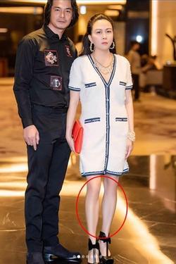 Phượng Chanel bị soi photoshop quá đà đến mức đôi đầu gối củ lạc đặc trưng biến mất luôn rồi!