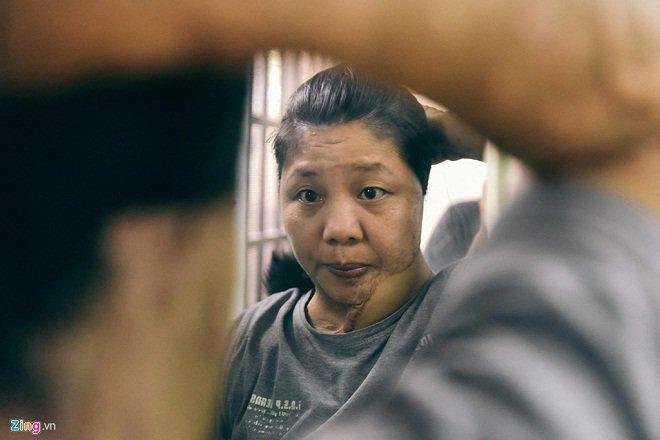 3 vụ tạt axit gây chấn động: Cô gái bị chồng sắp cưới hãm hại, đau nhất là người cuối cùng-3