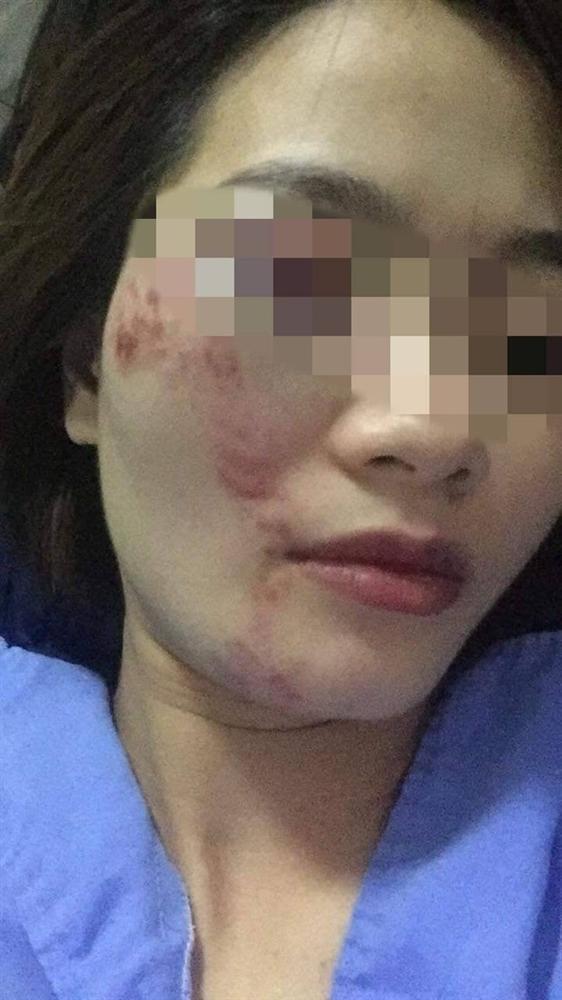 Nhắc không nói tục, nữ phụ xe bus bị 4 thanh niên đánh bầm mặt đúng ngày 20/10-2