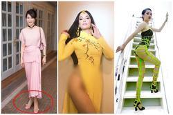 SAO MẶC XẤU: MC Thanh Mai đi tất bên mất bên còn - Bảo Anh khó hiểu với trang phục 'bánh tét'
