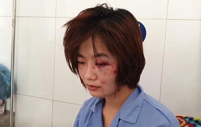 Khởi tố, truy bắt nhóm thanh niên đánh nữ nhân viên xe buýt ở Hà Nội-1