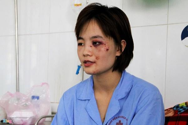 Nữ phụ xe bị 5 thanh niên đánh nhập viện: 'Tôi tủi thân và ám ảnh'-1
