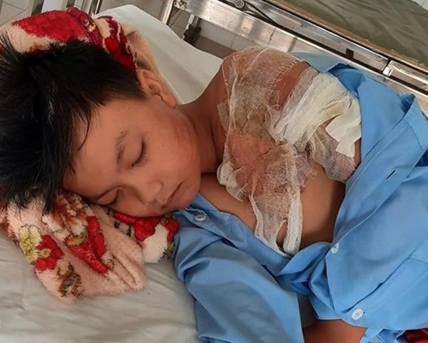 Bé trai 11 tuổi bị bỏng 60% vì cha tạt nước sôi-1