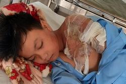 Bé trai 11 tuổi bị bỏng 60% vì cha tạt nước sôi