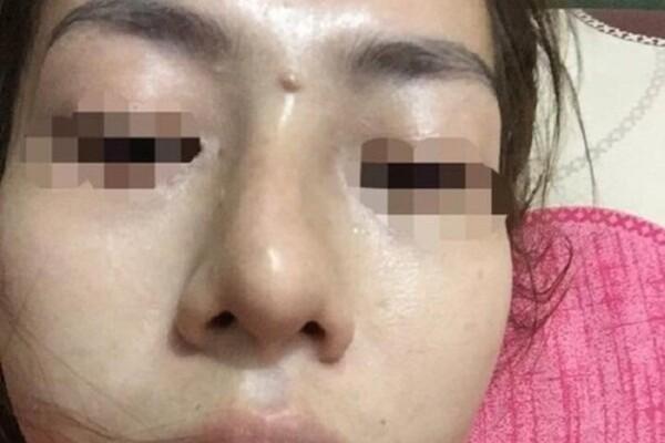 Giấu mẹ đi nâng mũi giá 2 triệu lại được trả góp, bé gái 13 tuổi ở Yên Bái bị mù một bên mắt-1