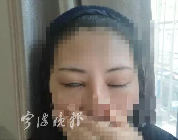 HÃI HÙNG: Liên tiếp những ca phẫu thuật thẩm mỹ hỏng mà cắt mí xong không nhắm nổi mắt-4