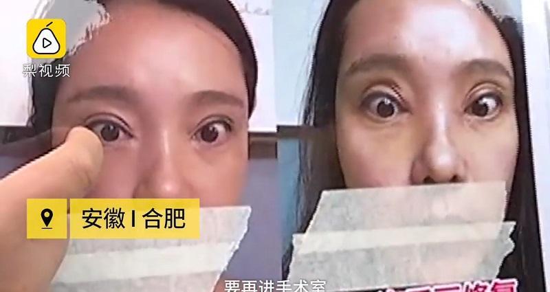HÃI HÙNG: Liên tiếp những ca phẫu thuật thẩm mỹ hỏng mà cắt mí xong không nhắm nổi mắt-5