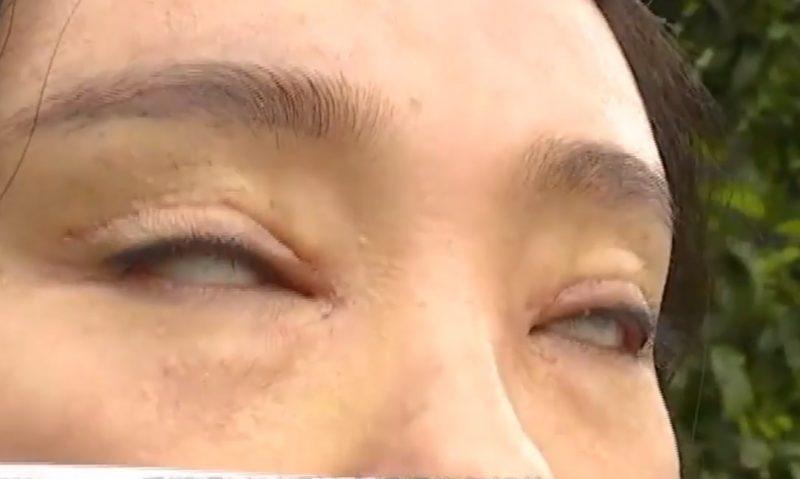 HÃI HÙNG: Liên tiếp những ca phẫu thuật thẩm mỹ hỏng mà cắt mí xong không nhắm nổi mắt-6