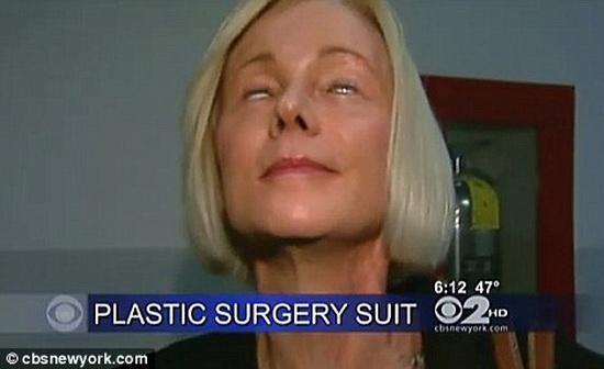 HÃI HÙNG: Liên tiếp những ca phẫu thuật thẩm mỹ hỏng mà cắt mí xong không nhắm nổi mắt-7