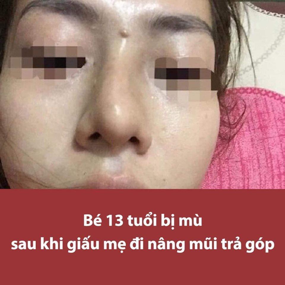 HÃI HÙNG: Liên tiếp những ca phẫu thuật thẩm mỹ hỏng mà cắt mí xong không nhắm nổi mắt-8