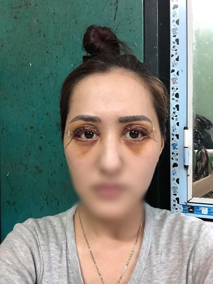 Chi gần 50 triệu đồng để cắt mí tại spa của hot girl dao kéo Vân Tokyo, cô gái sống dở chết dở vì không nhắm được mắt-5