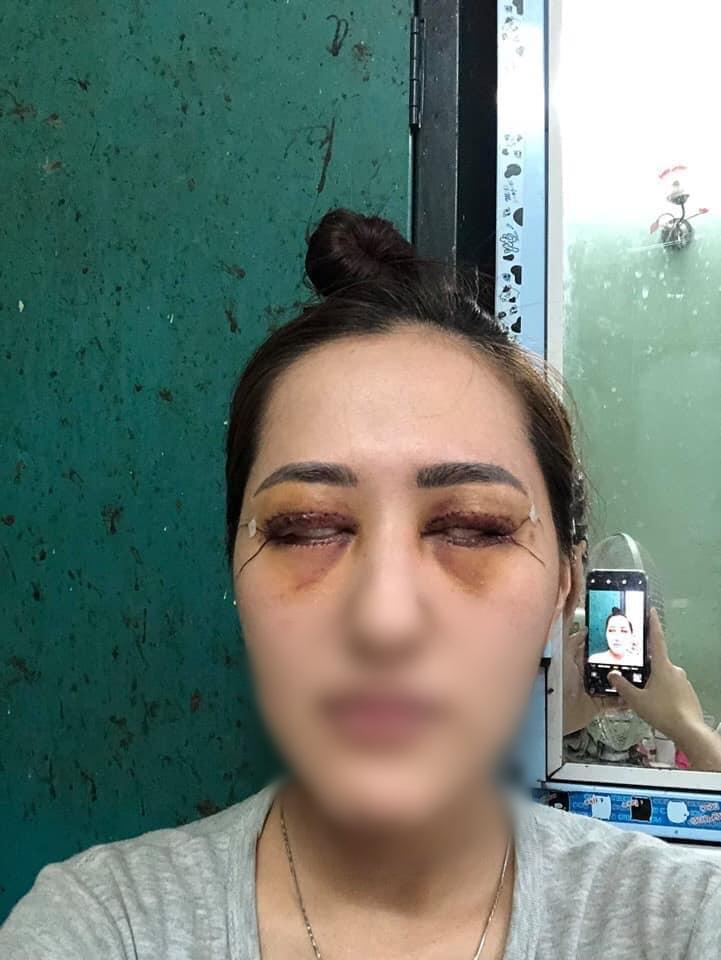 Chi gần 50 triệu đồng để cắt mí tại spa của hot girl dao kéo Vân Tokyo, cô gái sống dở chết dở vì không nhắm được mắt-6