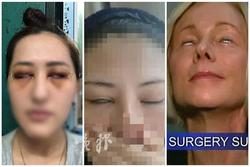 HÃI HÙNG: Liên tiếp những ca phẫu thuật thẩm mỹ hỏng mà cắt mí xong không nhắm nổi mắt