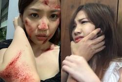Tiểu tam của 'Hoa hồng bên ngực trái' - Lương Thanh bỗng đăng ảnh tơi tả, lộ kết cục của bản thân trong phim?