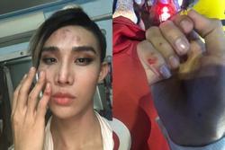 Học trò Thanh Hằng bị tài xế xe ôm công nghệ đánh sứt đầu mẻ trán