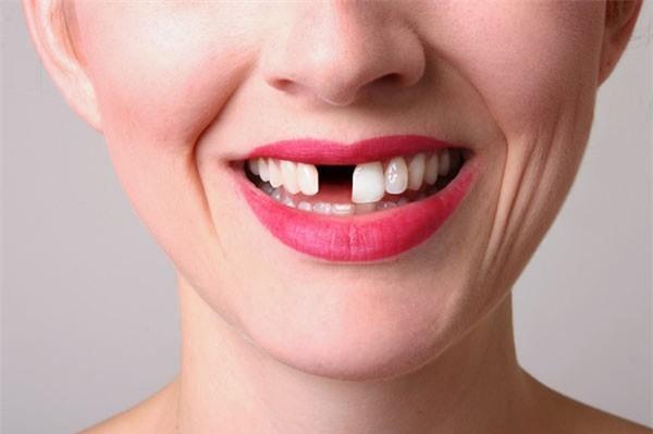 Giải mã giấc mơ: Rụng răng là điềm lành hay xấu mà nhiều người hay sợ?-2